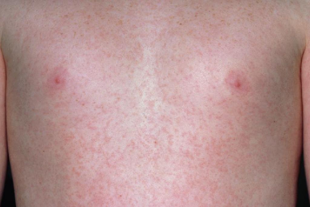 qizilcha virusi